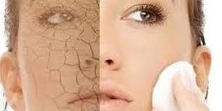 Cách chọn kem dưỡng ẩm cho da khô
