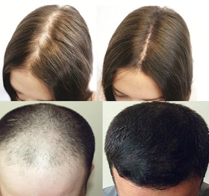 Đặc trị hói đầu chống rụng tóc