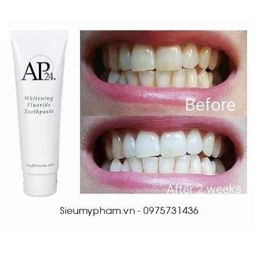 Kem trắng răng AP24